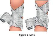 Barton Bandage APPLYING BANDAGES  sling